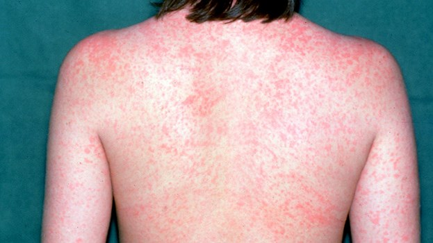 Essential-Facts-About-Measles-RM-722x406